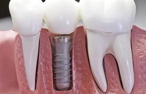 хірургічна стоматологія київ лук'янівка