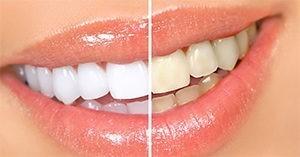 відбілювання зубів київ лук'янівка