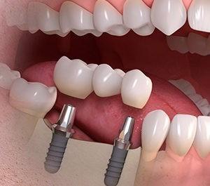 протезирование зубов лукьяновка киев