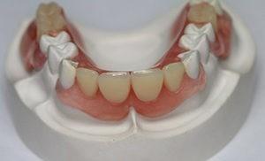 протезирование зубов киев лукьяновская