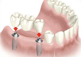 имплантация зуба лукьяновка киев