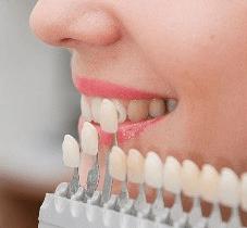 Реставрация зубов лукьяновка
