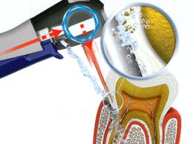 вектор терапия стоматология Киев