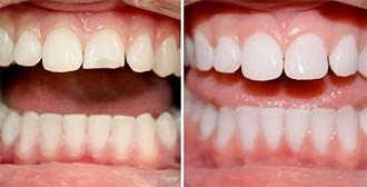 пломбування передніх зубів