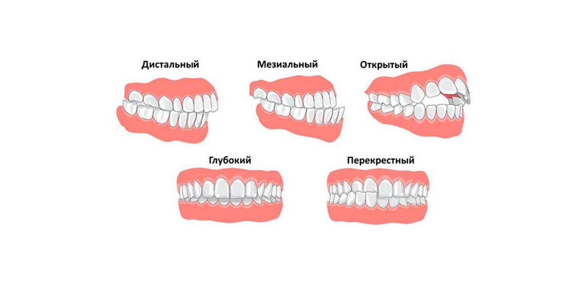исправление прикуса в стоматологии