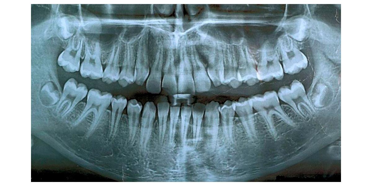 3D сканирование челюсти - кому оно нужно?