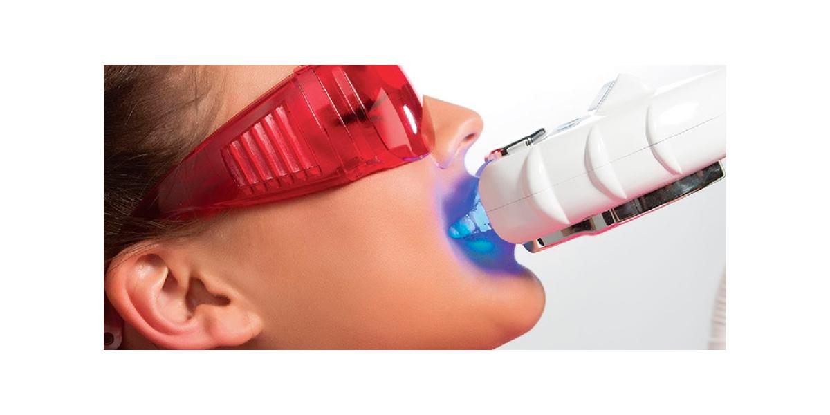 Что такое отбеливание зубов холодным светом?