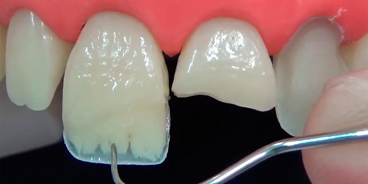 Какие типы пломб сейчас ставят на зубы?