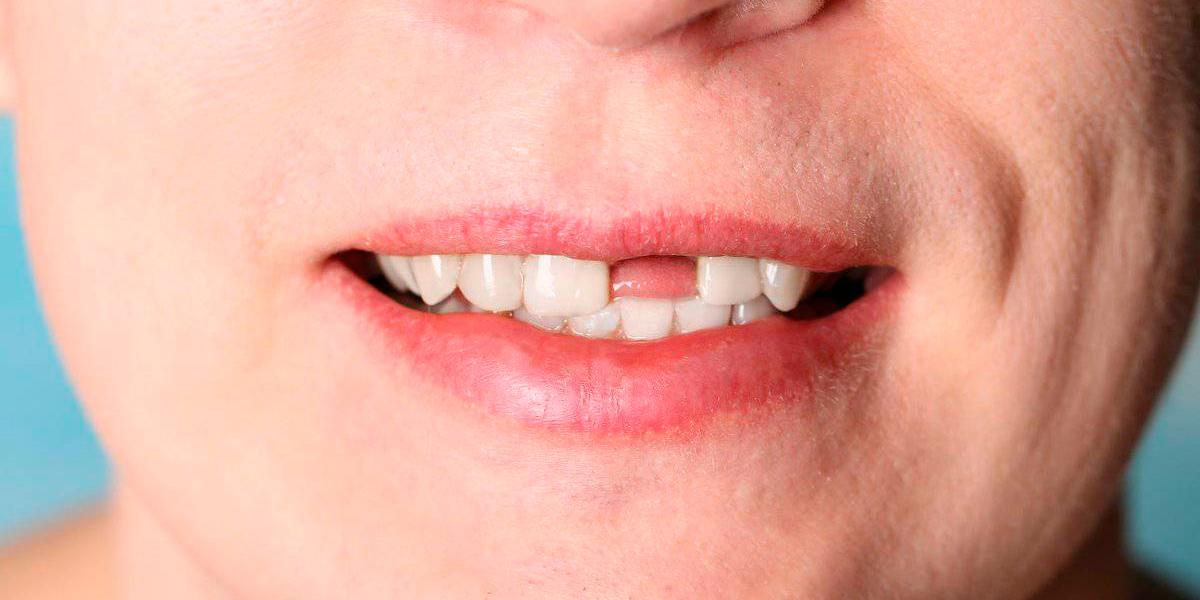 Чем может грозить недостаток зубов во рту?