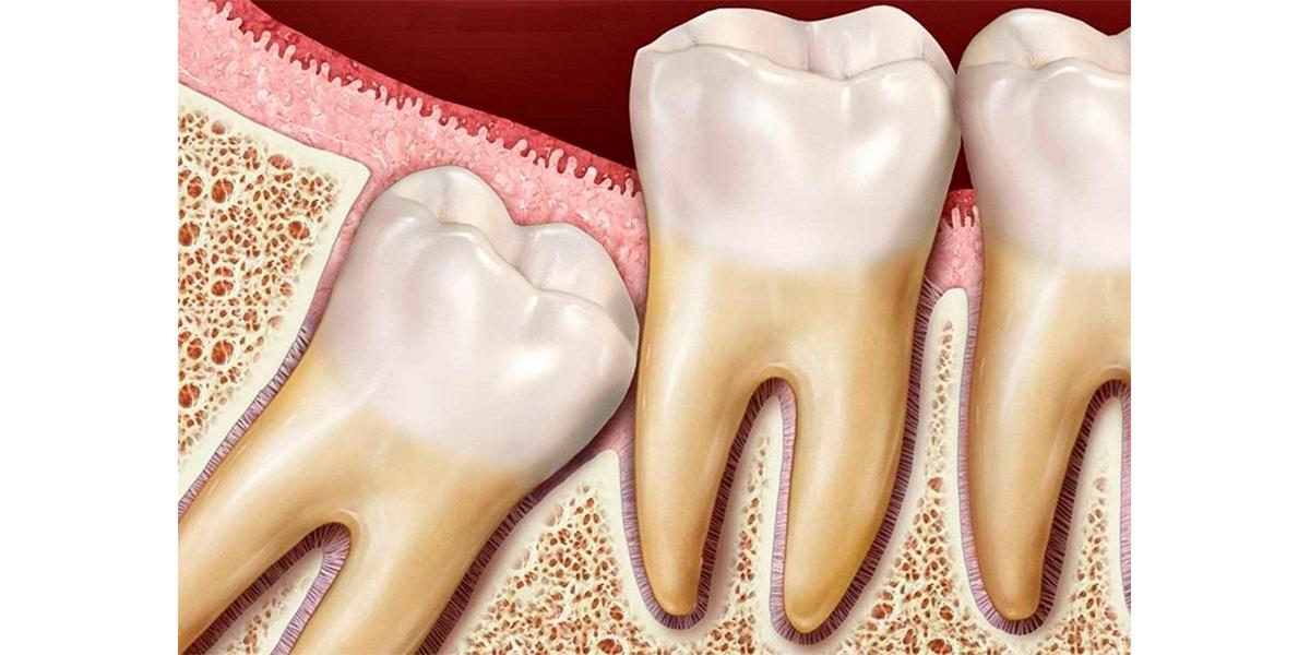 Как определить что начали расти зубы мудрости?