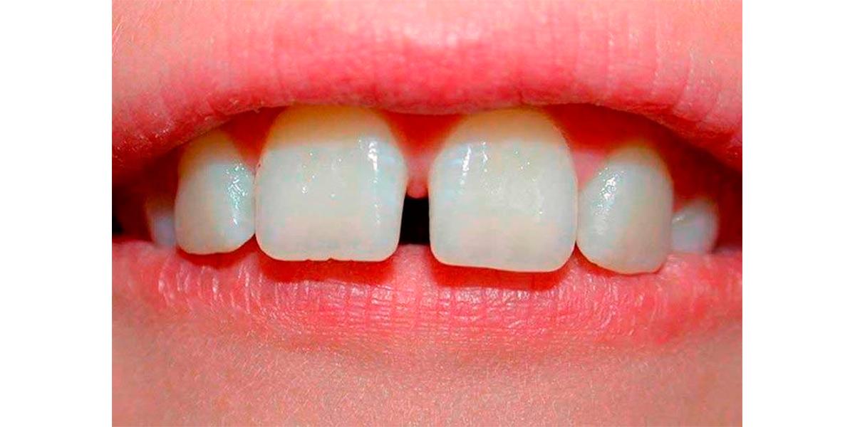 Есть щель между зубами - как ее убрать?