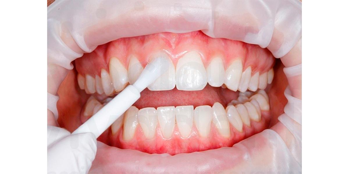 Восстановление эмали зубов – возможно ли?